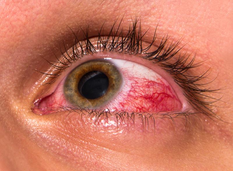 olho vermelho piscina